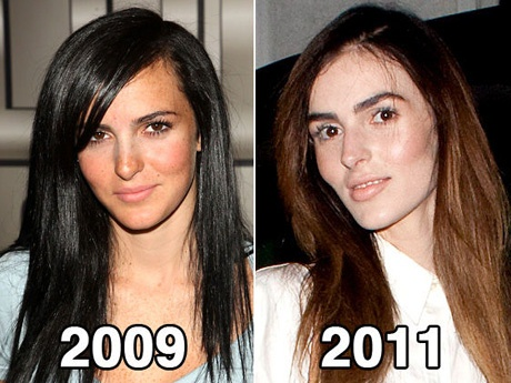 Ali Lohan's New Face Explained